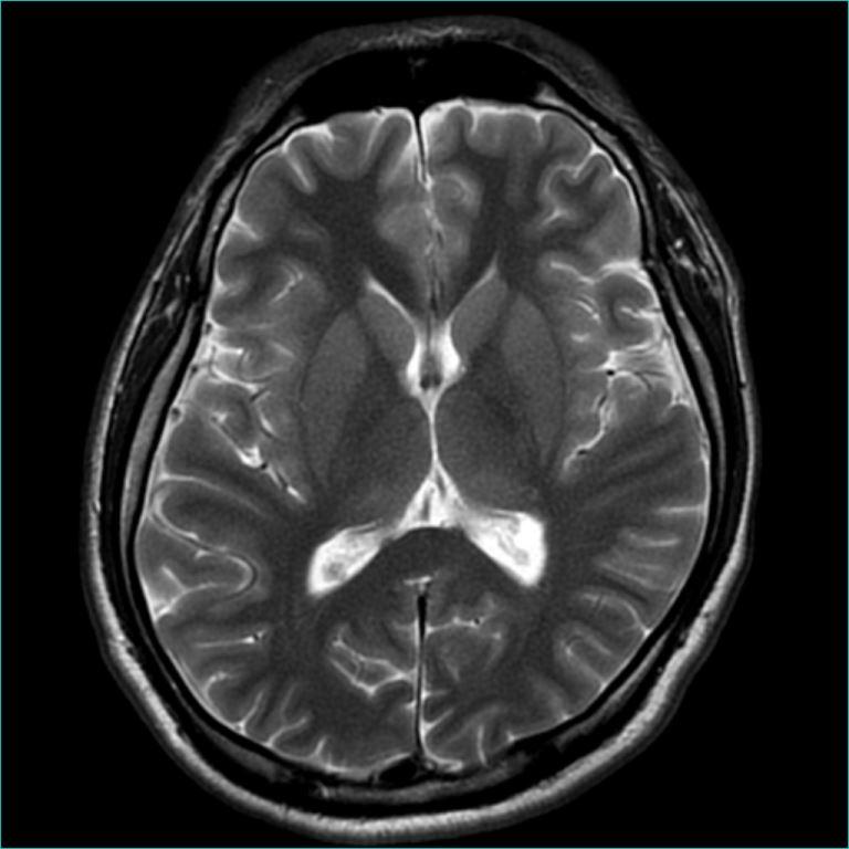 MRI12